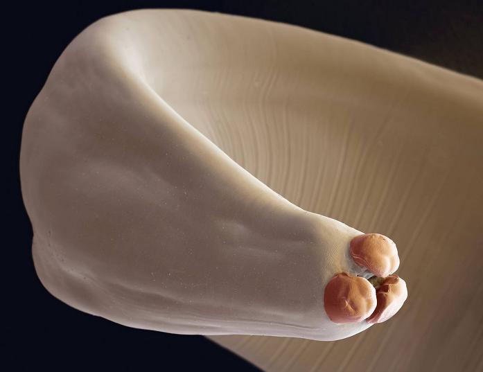 glista-ludzka-ascaris-lumbricoides